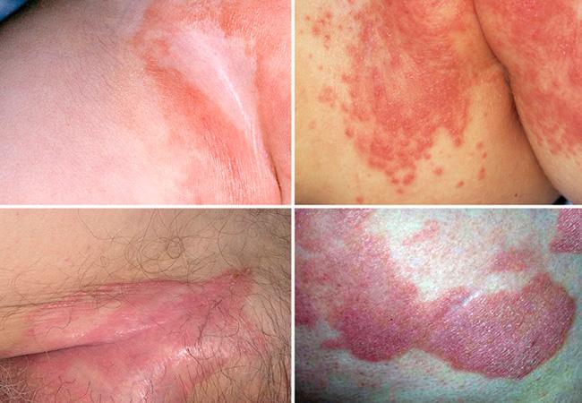 Контактный дерматит на лобке thumbnail