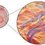 Белые точки на головке пениса могут возникнуть из-за венерических инфекций