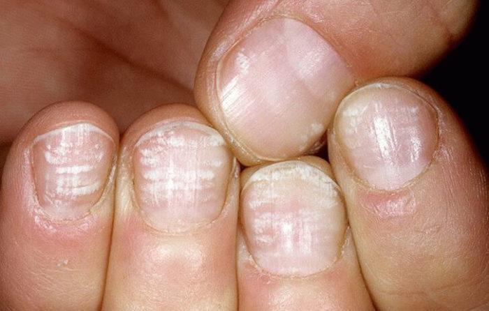Грибок ногтей на ногах фото начальная стадия лечение в домашних условиях