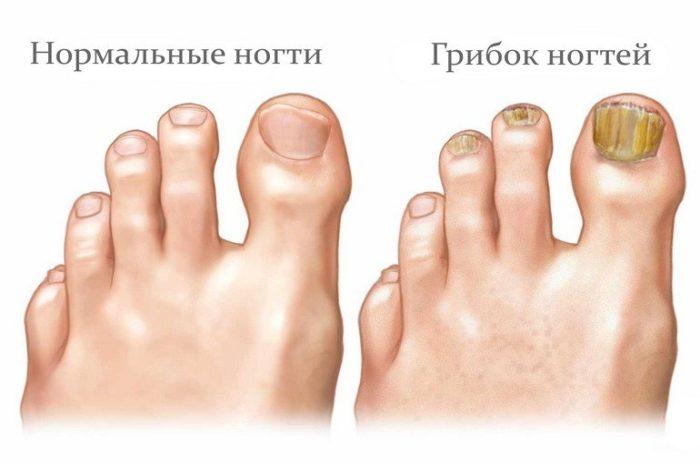 Грибок на ногтях доставляет дискомфорт больным