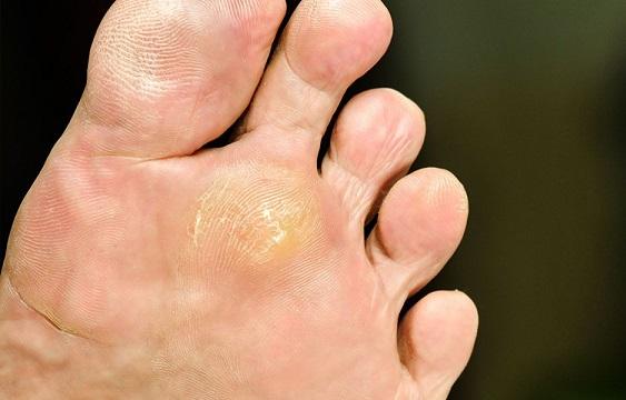 При грибке стопы требуется лечение противогрибковыми мазями