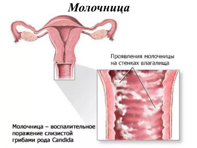 Молочницу вызывают грибки Кандида