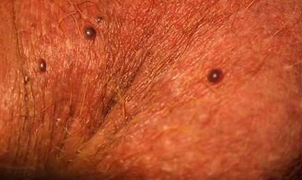 Герпес на теле симптомы фото лечение в 2018 году