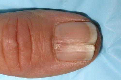 Трещины на ногтях вызываются грибками